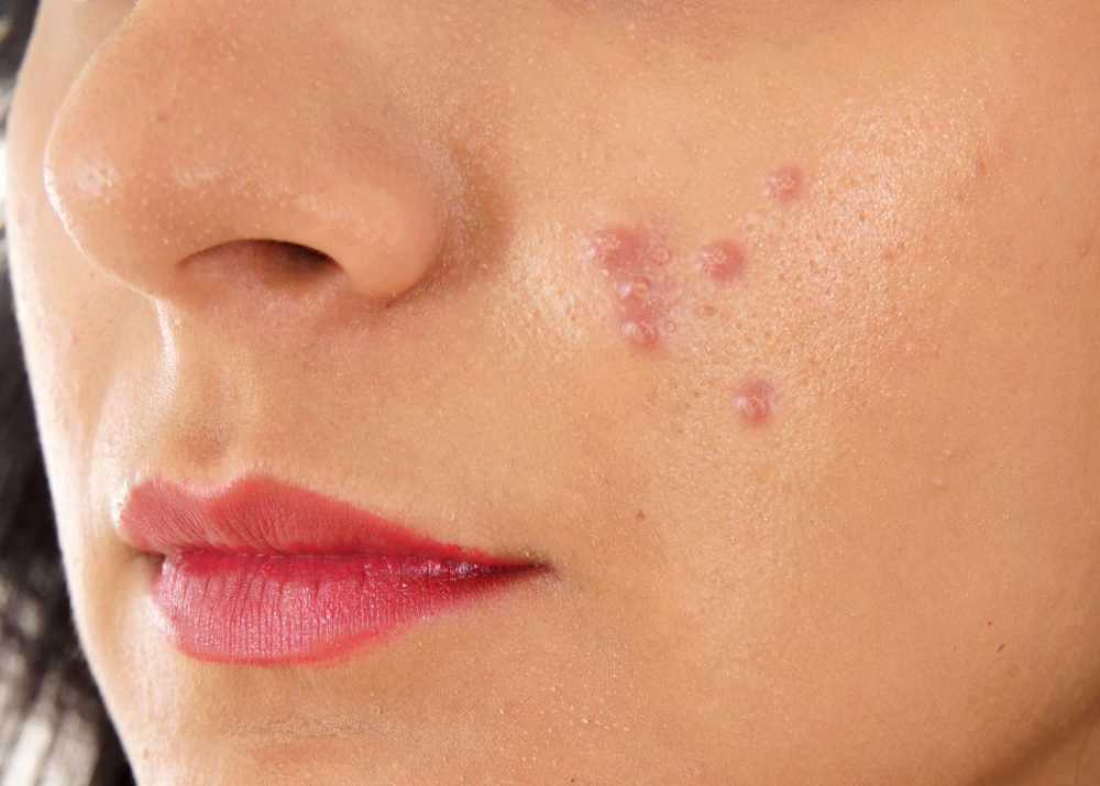 pimples on face